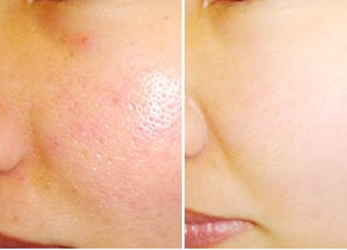 Ngoài ra, để giúp da mặt trắng sáng, sạch mụn và se khít lỗ chân lông hiệu quả, bạn nên: