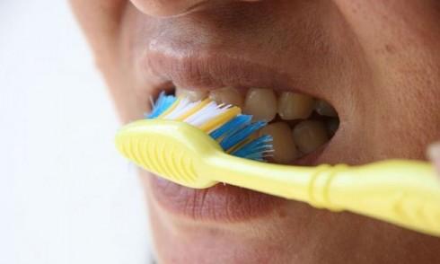 """Hàm răng của bạn xỉn màu? Bạn đã thực hiện nghiêm túc các cách làm trắng và phải """"cầu cứu"""" đến nha sĩ nhưng tình hình không mấy khả quan."""