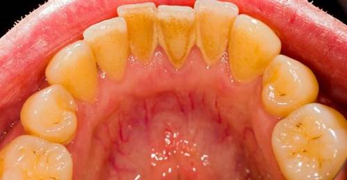 Cao răng nhiều đến đâu cũng bong ra từng mảng nếu ngậm thứ nước này 1 phút trước khi ngủ