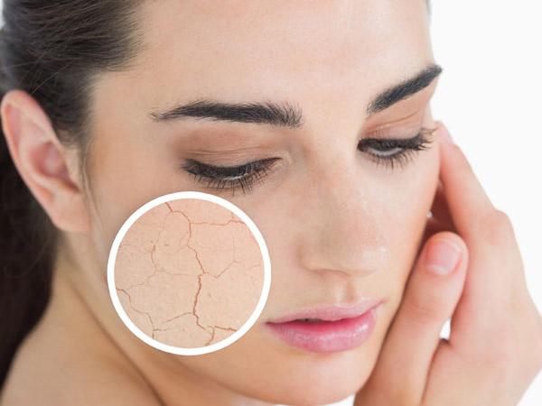 Biến da khô trở nên mịn màng chỉ trong nháy mắt ảnh 1