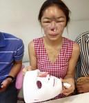 Cô gái suýt phải cắt bỏ mũi vì phẫu thuật thẩm mỹ hỏng