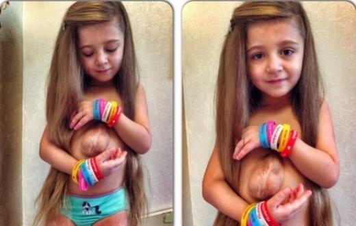 Kinh ngạc bé 5 tuổi có trái tim ngoài lồng ngực - 1