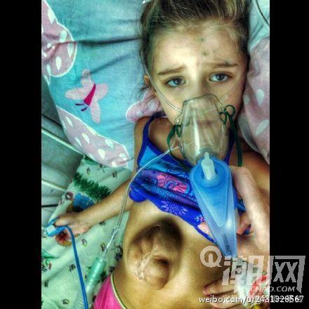 Kinh ngạc bé 5 tuổi có trái tim ngoài lồng ngực - 3