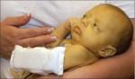 Bệnh vàng da ở trẻ sơ sinh: Biến chứng rất nguy hiểm