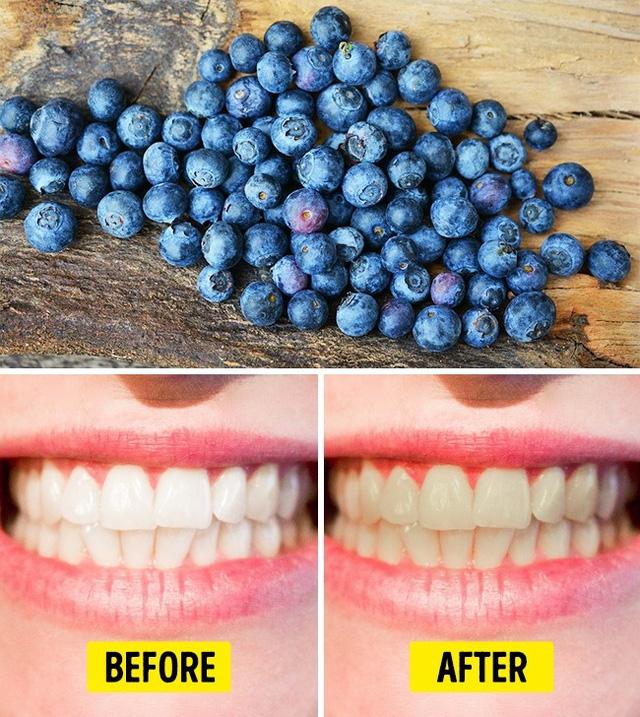 9 loại thực phẩm hay ăn hàng ngày có hại cho răng ít người biết