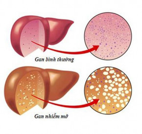 7 dấu hiệu không ngờ tới cảnh báo gan của bạn đang xấu đi