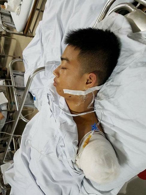Chàng trai bị ô tô cán cụt tay vì cứu bạn gây xúc động mạnh - 2