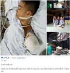 Chàng trai bị ô tô cán cụt tay vì cứu bạn gây xúc động mạnh