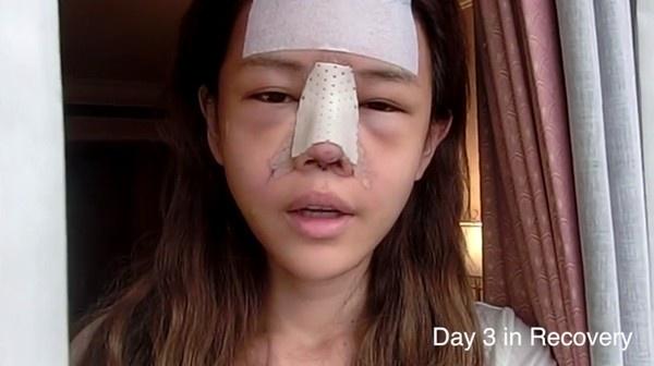 Cô gái chia sẻ mẹo chăm sóc sau nâng mũi không bị kéo mắt, hay gặp tác dụng phụ