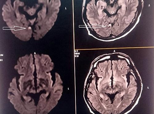 Nhờ được cấp cứu kịp thời, não của bệnh nhân Cự nhanh chóng tan cục máu đông, tái thông mạch máu. Ảnh: Bệnh viện cung cấp