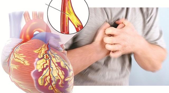 Bất ngờ bệnh tim mạch vành lại là nguyên nhân gây tử vong cao nhất trên thế giới