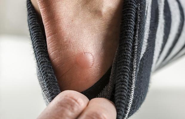 Lỗi sai đi giày mùa đông, nếu không bỏ bàn chân sẽ đau nhức khó chịu