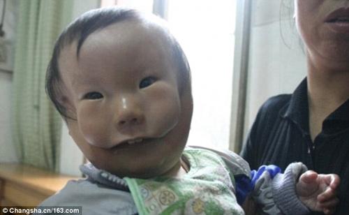 Cậu bé có gương mặt như đeo mặt nạ khiến hàng triệu người xót xa