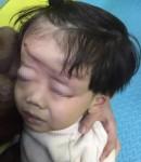 Bé trai 4 tuổi bị xe đạp điện trong khu vui chơi cán qua đầu biến dạng