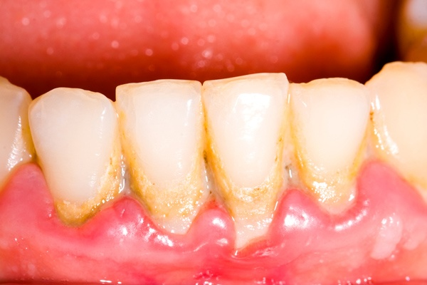 Mẹo nhỏ biến răng ố vàng thành trắng sáng như bọc sứ để tự tin đón Tết