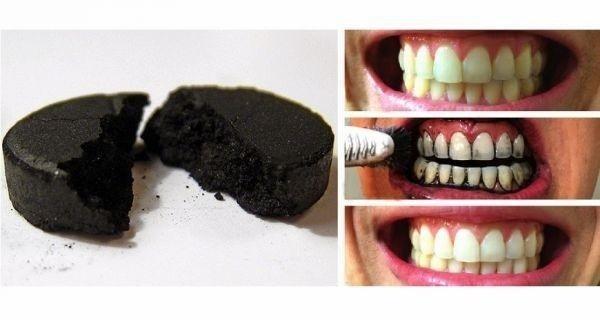làm trắng răng sau tết
