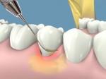 Cách trị viêm lợi, chảy máu chân răng hiệu quả không cần dùng thuốc