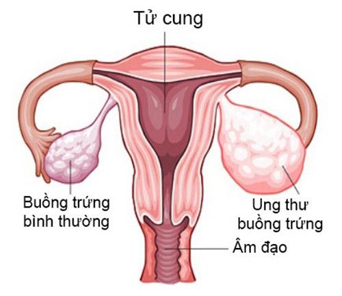 Dấu hiệu ung thư buồng trứng cực kì nguy hiểm với 10 biểu hiện sau