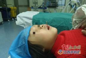Ăn xúc xích nướng, bé gái bị que xiên đâm vào cổ họng