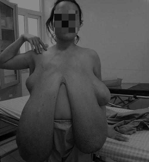"""Người phụ nữ bỗng có ngực """"khủng"""" dài đến đầu gối sau lần mang thai thứ 2"""