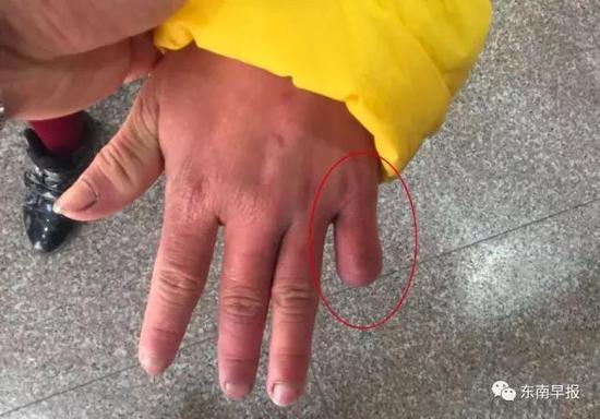 Ngón tay út bên trái của cô bé bị mẹ dùng kéo cắt mất 1 đốt.