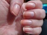 Không phải màu mà móng tay có các hình lạ này cảnh báo bạn đang thiếu chất