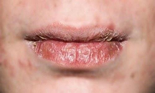 Dừng 'ngay và luôn' những sai lầm này để đôi môi không còn khô nẻ, thâm xì và bong tróc