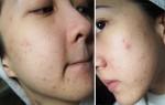 Nguyên nhân gây ra mụn và cách trị mụn hiệu quả cho các nàng da mụn