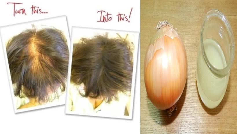 Bật mí cách dùng hành tây giúp tóc mọc dày cấp tốc hết hói