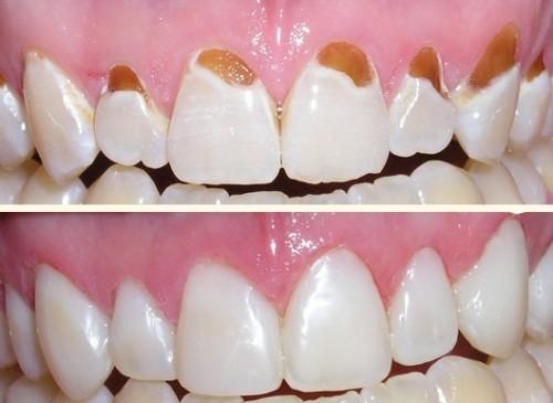 Kết quả hình ảnh cho răng để loại bỏ đi các mảng bám có sâu