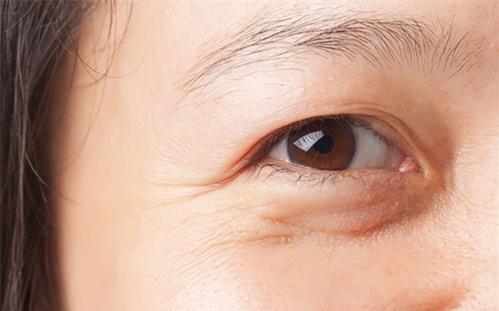 5 thói quen khiến gương mặt bạn chi chít nếp nhăn, muốn da đẹp lên phải lập tức bỏ