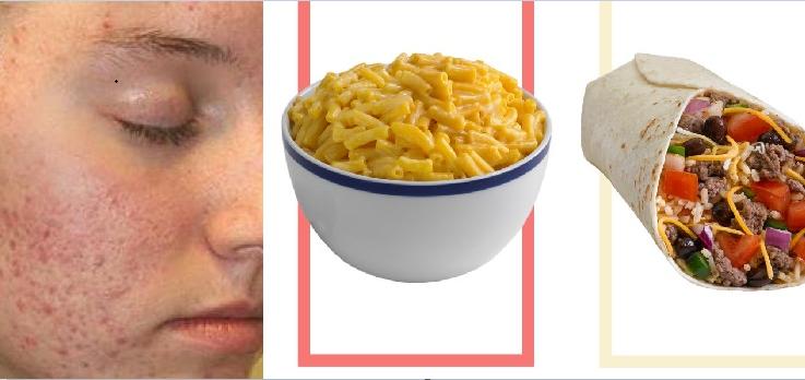 Những món càng ăn khiến làn da của bạn xấu đi trông thấy