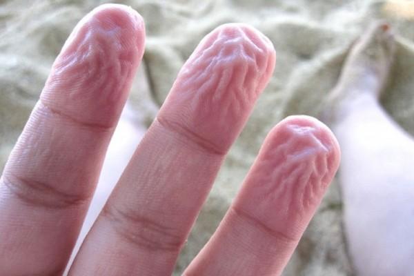 90% dân số trên thế giới không biết vì sao da ngón tay lại nhăn nheo khi ngâm nước