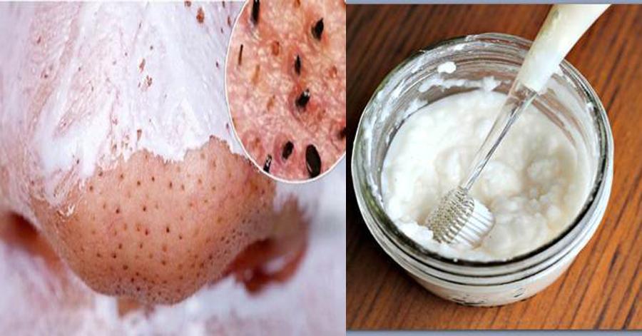 Trộn muối với kem đánh răng rồi chà lên mũi, mụn đầu đen tự khắc chui ra không cần nặn