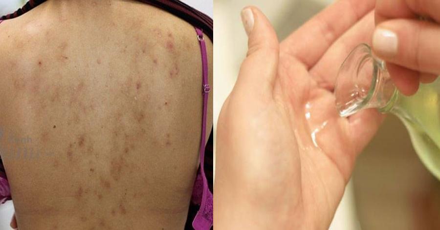 Dùng dầu dừa để dưỡng da hàng ngày mà không biết điều này chẳng khác nào bạn đang tự hủy hoại da mình