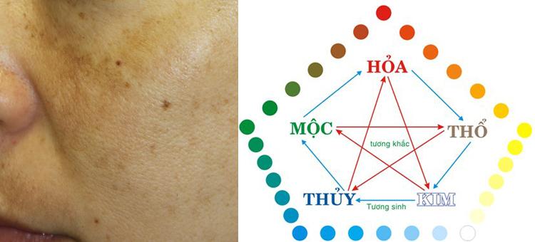 Có hay không mối liên quan giữa nám da và phong thủy?