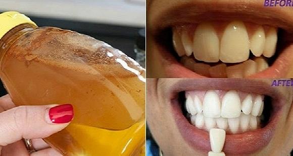 Ngậm nước thần thánh này, răng ố vàng cũng chuyển thành trắng bóng