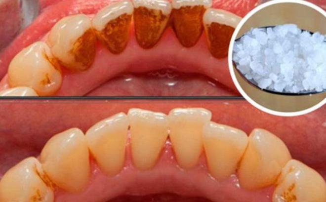 Cao răng sạch bóng, trắng toát không cần hóa chất nhờ 2 cách đơn giản