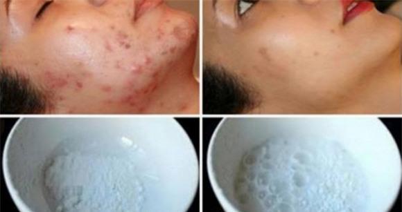 Tự làm mặt nạ loại bỏ mọi nếp nhăn, sẹo mụn, làm trắng da sau 2 lần sử dụng