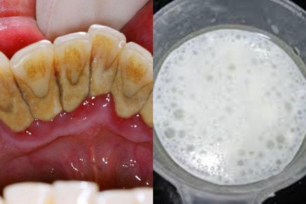 1 phút ngậm nước này trước khi ngủ cao răng nhiều đến mấy cũng bong hết