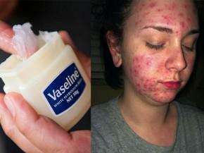 Đừng quá tôn sùng Vaseline mà không biết đến những tác hại này của chúng trong làm đẹp