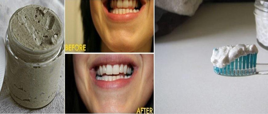 Loại bỏ mảng bám ố vàng, trắng răng và hết viêm nướu nhờ kem đánh răng tự làm tại nhà