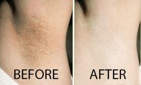 5 cách làm trắng mịn làn da dưới cánh tay không hề tốn tiền
