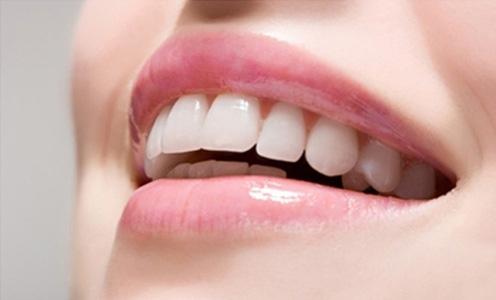 Top 4 cách làm trắng răng cấp tốc siêu hiệu quả trong vòng 2 phút