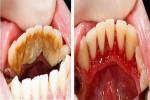 Ngậm loại nước này 1 phút trước khi đi ngủ, cao răng từng mảng cũng bong ra hết, miệng thơm tho tức thì