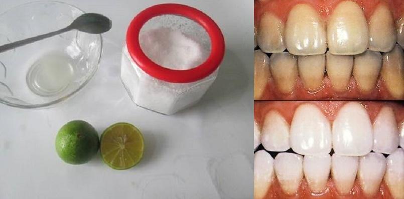 Dùng muối theo cách này, chỉ sau 3 phút dù có hôi miệng hay răng ố vàng lâu năm cũng sẽ biến mất ngay tức khắc
