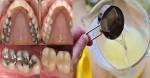 Súc miệng với thứ này 30 giây, chẳng còn sợ đau răng hay hôi miệng