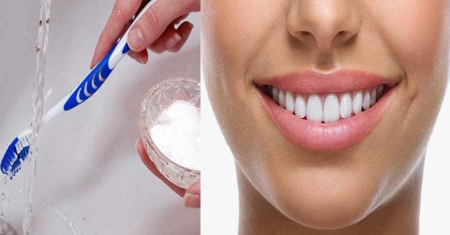 Tuyệt chiêu tẩy trắng răng cấp tốc hiệu quả chỉ bằng 1 lọ oxy già