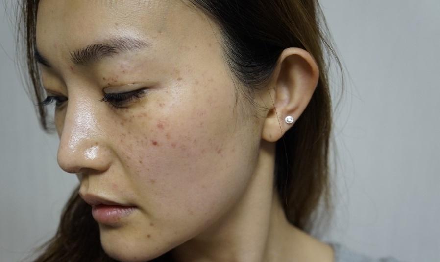 ĐỘC ĐÁO cách trị nám từ Nhật đến phụ nữ Việt Nam cũng phải kinh ngạc về hiệu quả