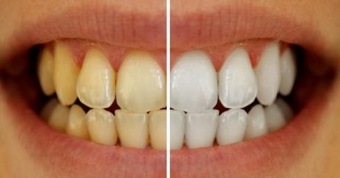 Chỉ mất 3 phút, bạn sẽ có hàm răng trắng bóng khi làm theo cách này
